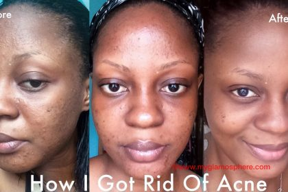 How I Got Rid Of Acne And My Current Skincare Routine
